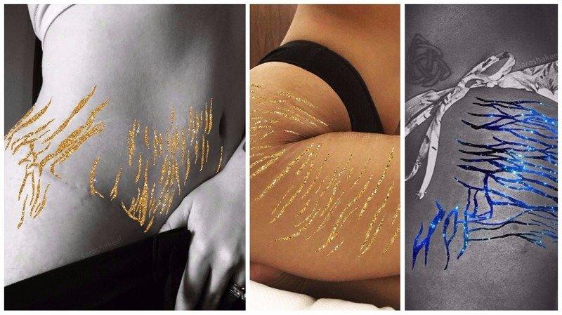 Растяжки на женском теле как объект искусства (13фото)