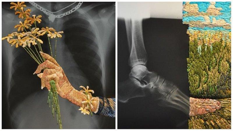 Рентгеновская пленка и вышивка: необычные картины Мэтью Кокса (26фото)