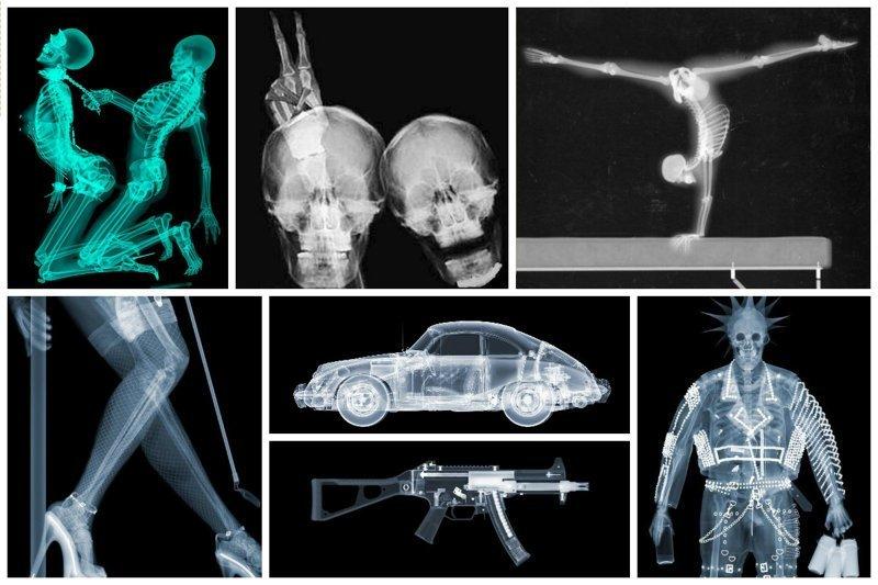 Мир в рентгеновских лучах - вид искусства, где видна изнанка бытия (36фото)