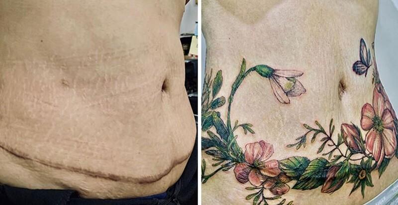 25 татуировок для перекрытия шрамов и других дефектов на теле (27фото)